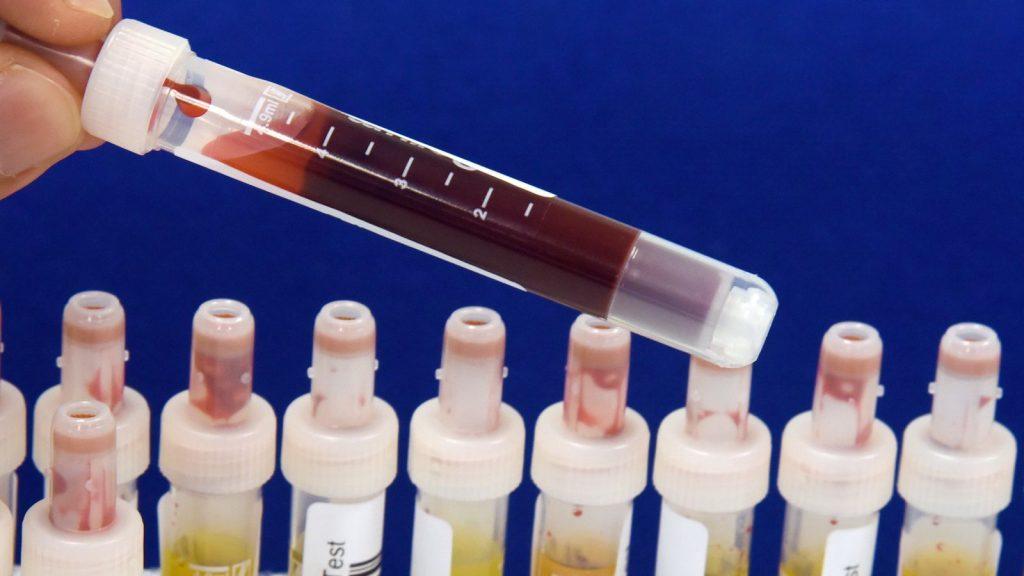 Wie schwierig ist Covid-19?  Corona-Forschung definiert Immuntypen