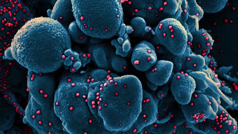 Die 7-Tage-Inzidenz von Neuinfektionen steigt weiter an, zwei neue Todesfälle - BZ Berlin