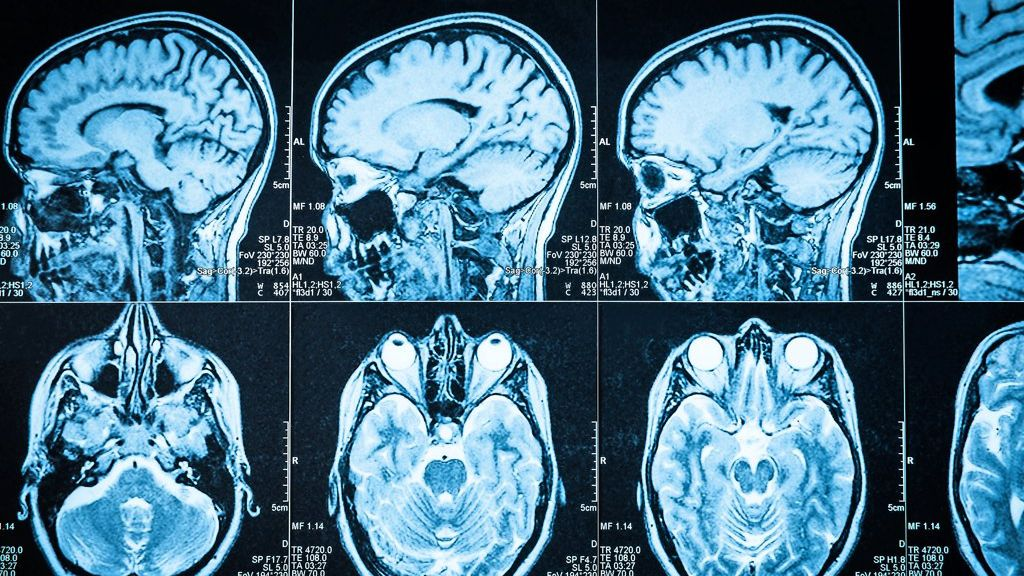 Coronavirus im Gehirn: So gelangt Sars-CoV-2 ins Gehirn