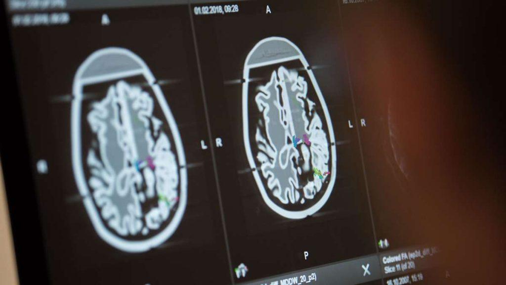 Corona: Keine reine Lungenerkrankung - welche Schäden treten im Gehirn auf?